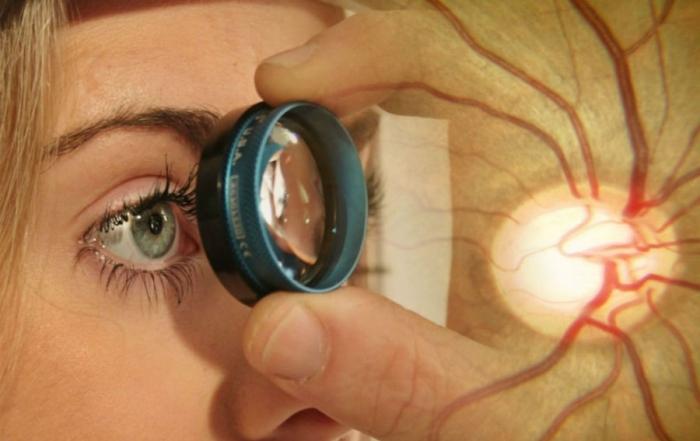 Glaucoma-900x600